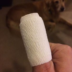 Wound, post injury post 3 days